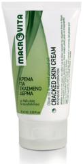 Macrovita Cracked Skin Ureum Crème (60ml)